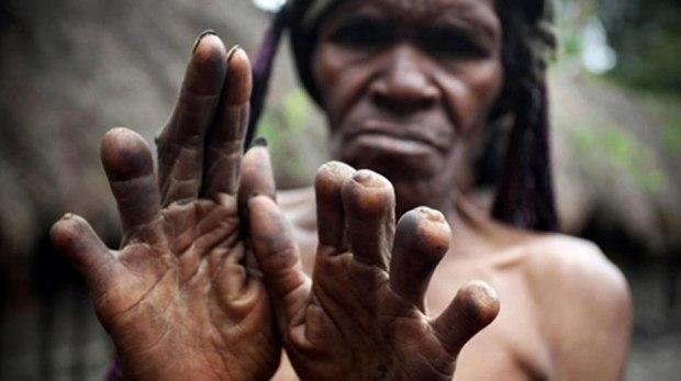 suku-dani3-potong-jari